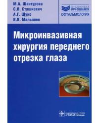 Микроинвазивная хирургия переднего отрезка глаза